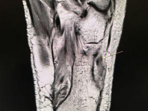 Peroneus longus tear on MRI 2 - HC Chang