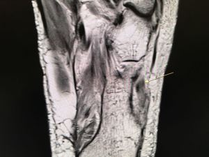 Peroneus longus tear on MRI 2 - HC Chang