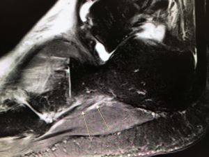 Peroneus longus tear on MRI - HC Chang