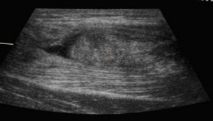 ultrasound ruptured rectus femoris